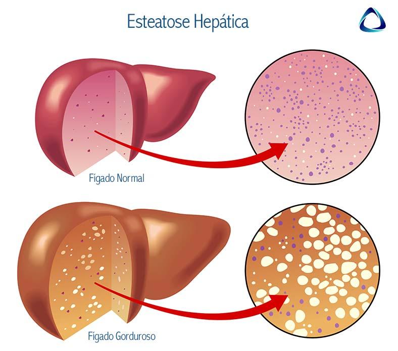 Comparação entre fígado normal e o gorduroso