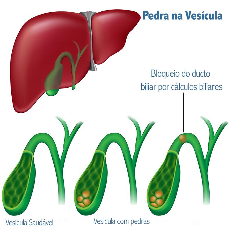 Comparação entre vesícula saudável e vesícula com pedras