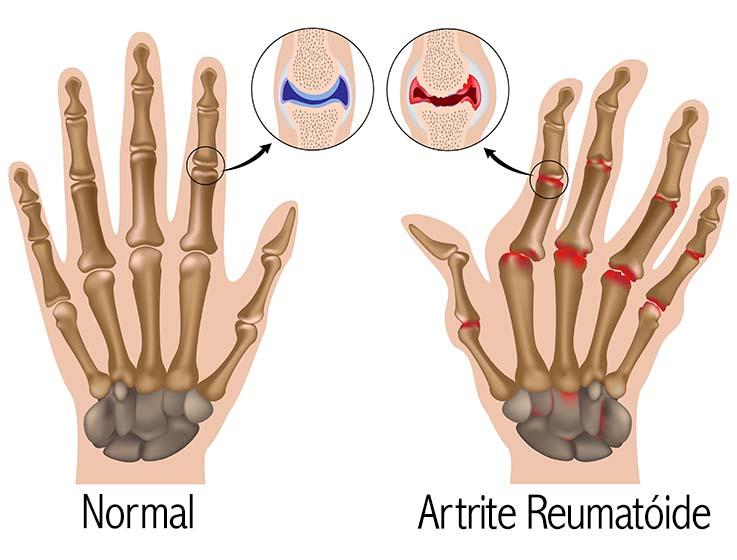 Comparação entre mão normal e com artrite reumatóide