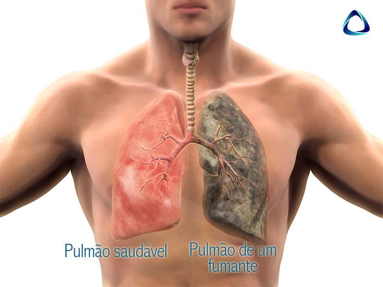 Comparativo entre pulmão saudável e fumante